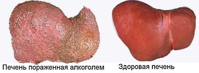 больной и здоровый орган