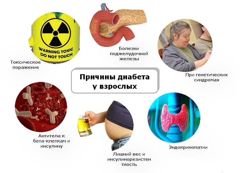 инфографика о причинах диабета у взрослых