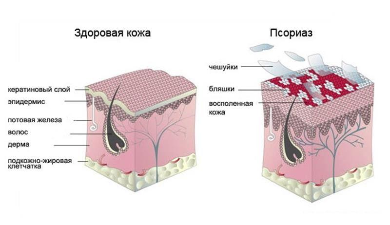 рисунок здоровой кожи и с псориазом