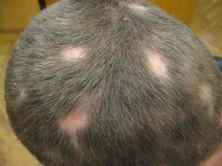 голова мужчины с пятнами залысин